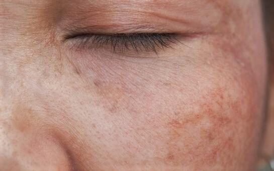 El bisabolol es un potente despingmentante natural para la piel