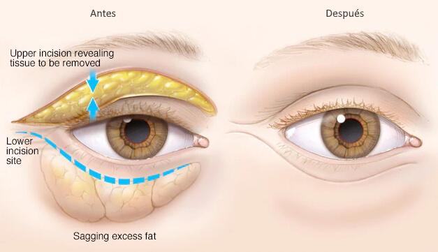 Operacion para eliminar bolsas de los ojos