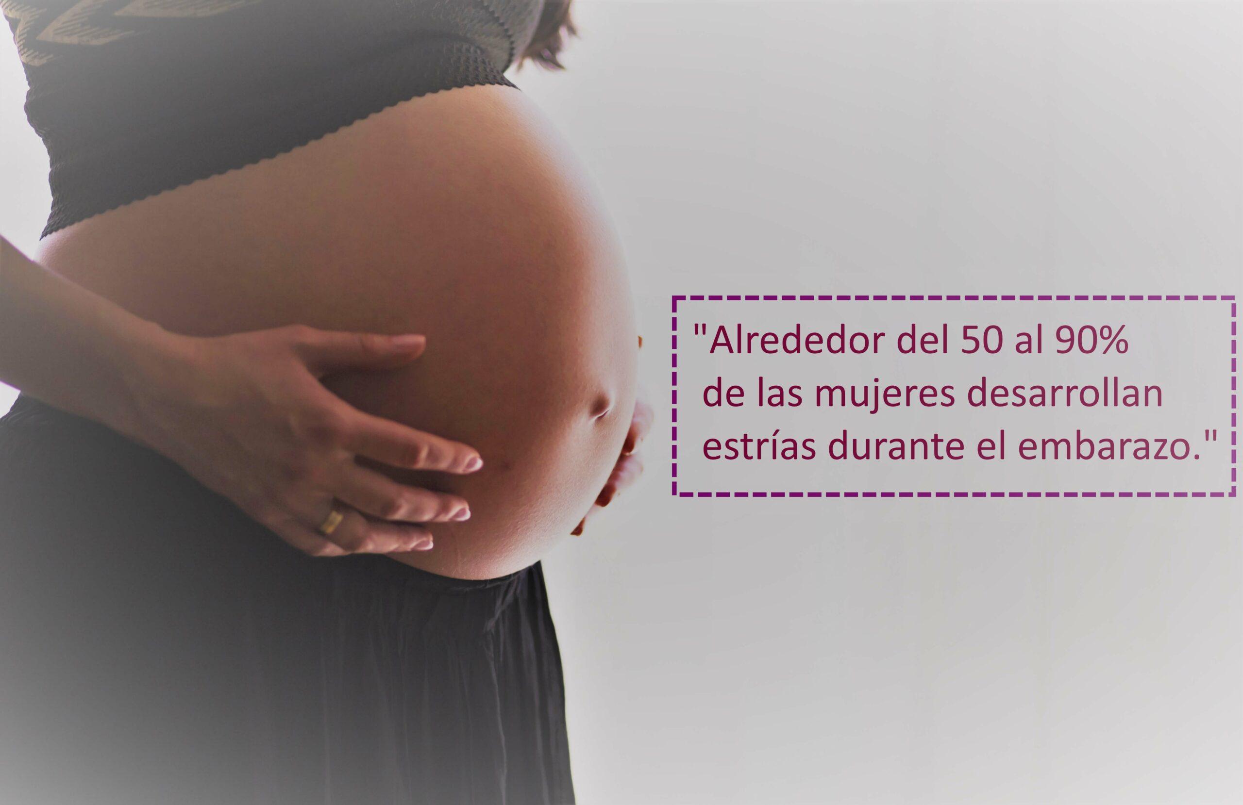 Estrias rojas durante el embarazo