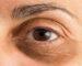 Ojeras, causas y tratamiento