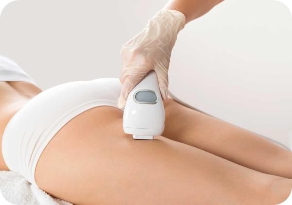 Tratamiento con laser para eliminar las estrias