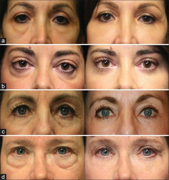 Resultados del tratamiento para eliminar las ojeras